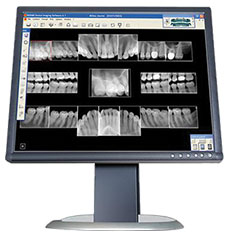 Low Radiation Dental X-Rays Conyers GA